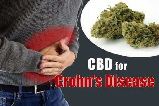 How CBD Helped Me In My Struggle Against Crohn's Disease